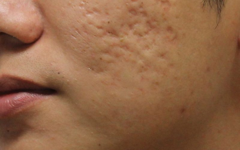 How to Get Rid of Pimple Scars
